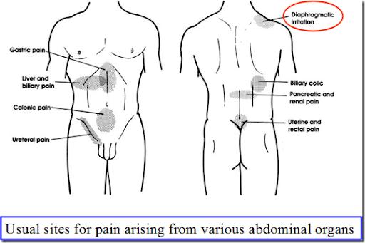 pancreas pancreas referred pain. Black Bedroom Furniture Sets. Home Design Ideas